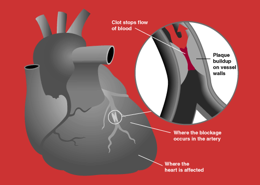 arteries of heart diagram. Aloe Vera and Heart Problems